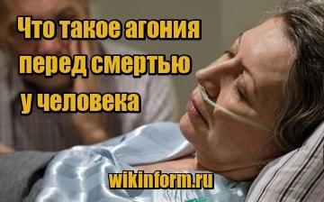 Судороги перед смертью у человека. Агония