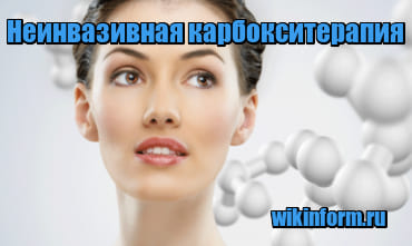 картинка Неинвазивная карбокситерапия